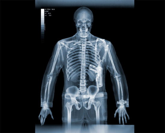 nickveasey xrayphoto14 Absolutely Amazing X Ray Photography By Nick Veasey