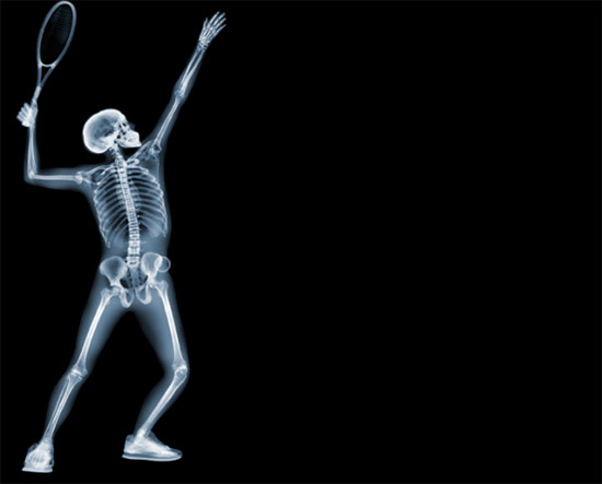 nickveasey xrayphoto15 Absolutely Amazing X Ray Photography By Nick Veasey