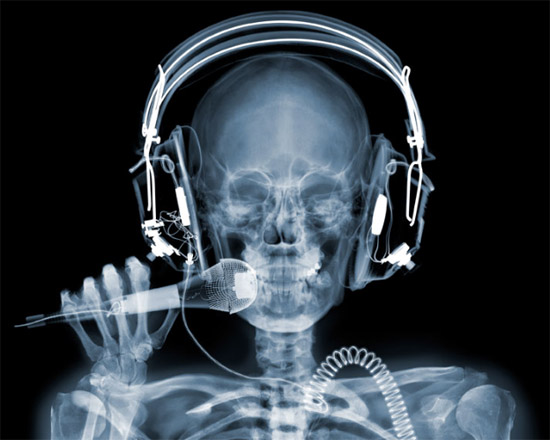 nickveasey xrayphoto16 Absolutely Amazing X Ray Photography By Nick Veasey