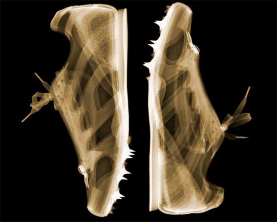 nickveasey xrayphoto31 Absolutely Amazing X Ray Photography By Nick Veasey